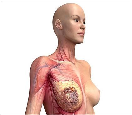 Вакцина для предотвращения рака груди почти в два раза уменьшает рецидивы заболевания
