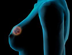 Компания Рош объявила о создании эффективного препарата для лечения тяжелого рака груди