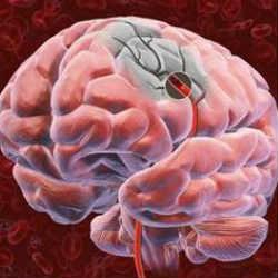 Опухоль головного мозга – общая информация