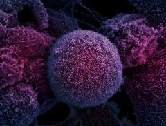 Рак победить невозможно?