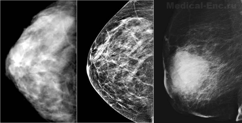 Гарантирует ли маммография точный диагноз?