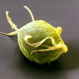Обнаружена связь между трихомониазом и раком простаты