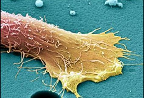 Витамин А изменяет клетки рака простаты, полностью их обезоруживая