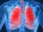 Диагностика рака легкого по выдыхаемому воздуху