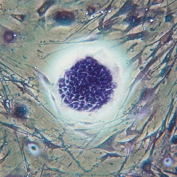 Описаны стволовые клетки меланомы