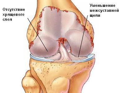 Лечение болезней суставов народными средствами