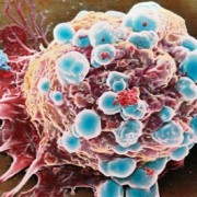 Инкурон приступил к клиническим испытаниям препарата по борьбе с резистентными видами рака