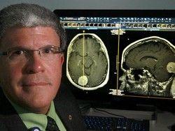 Голодание делает опухоли головного мозга уязвимыми