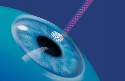 Не стоит опасаться лазерной корректировки зрения