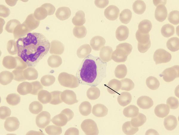 Почему хроническая инфекция может вызвать рак