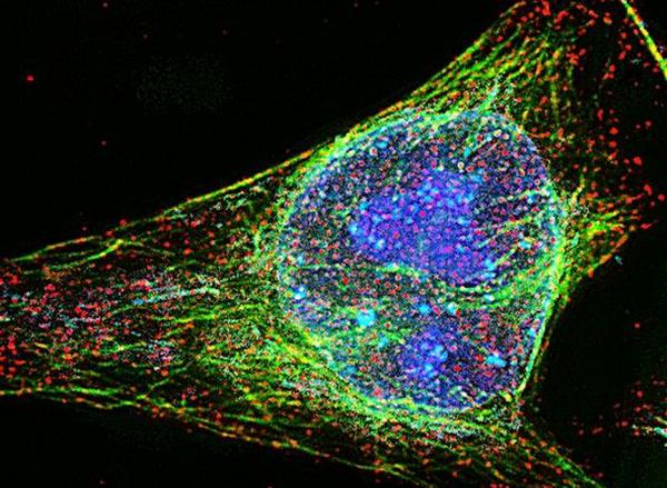 Рак может возникнуть из-за белковых модификаций, не требующих генетический мутаций