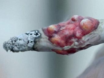 Британских курильщиков испугают больными раком сигаретами