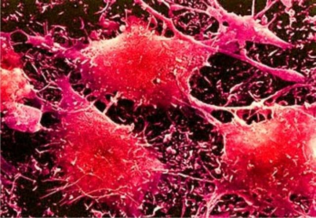 В Японии разрабатывают лекарство против раковых стволовых клеток