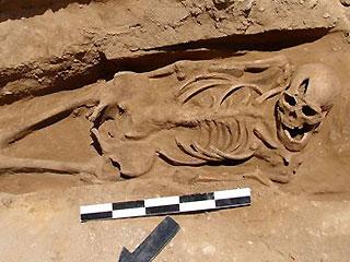 У 1600-летнего римского трупа была обнаружена зубная опухоль