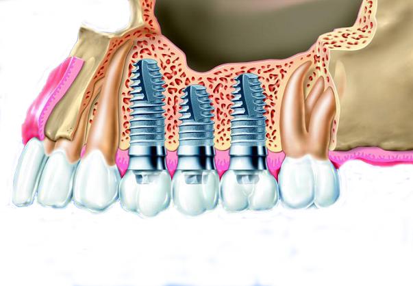 Имплантация зубов в клинике «Первый Доктор»