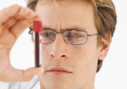 Создан метод ранней диагностики рака яичника по анализу крови