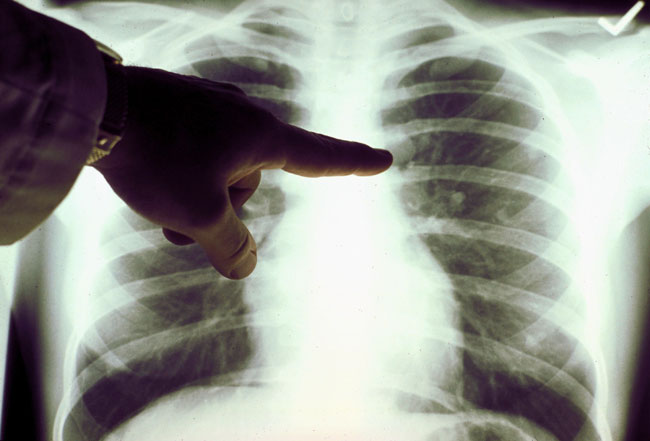 Новые перспективы лечения рака легких в Израиле