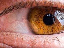 Рак кожи поражает не только кожные покровы, но и глаза