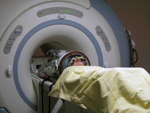 Сахар подсвечивает рак во время магнитно-резонансной томографии