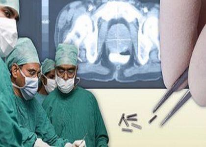 Прогресс в области радиационной онкологии