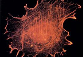 Вместо уничтожения раковых клеток нейтрофильные внеклеточные ловушки активируют их