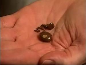 Откуда камни в наших почках?