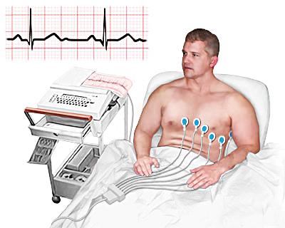 Современная функциональная диагностика (ЭКГ)