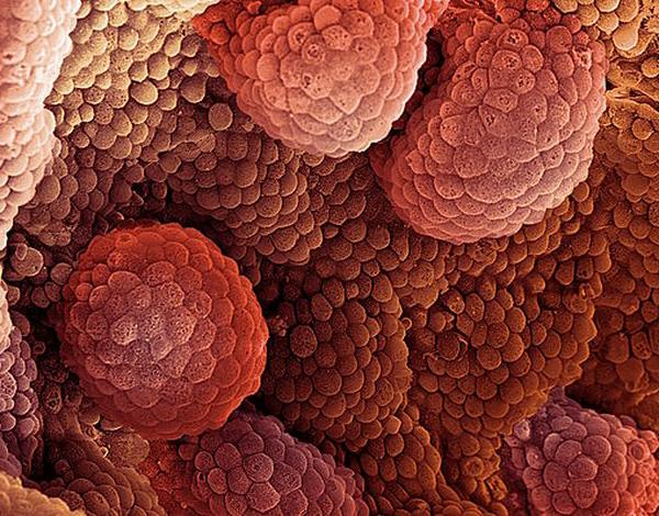 Метастазирующая опухоль — это гибрид раковых клеток и лейкоцитов