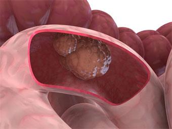 Хронический запор может стать причиной рака