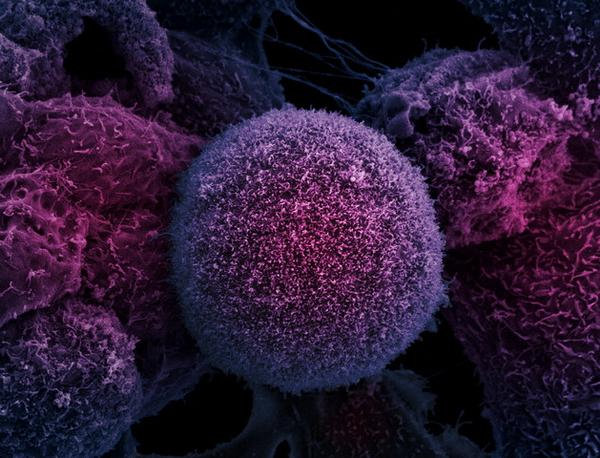 В опухолях простаты онкологи нашли один из самых распространенных в мире вирусов