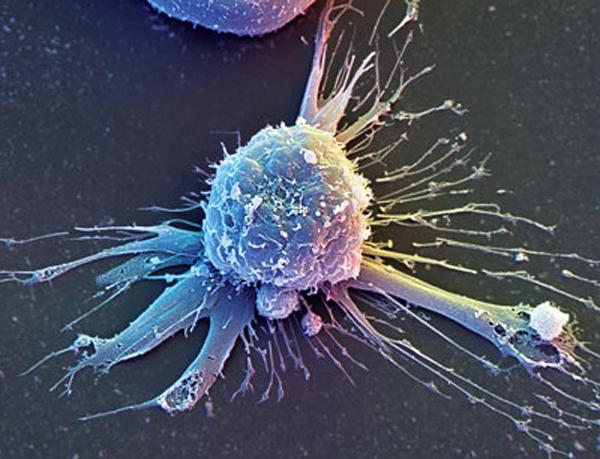 Стволовые клетки кишечника могут помочь в лечении рака