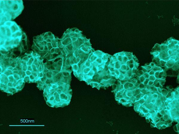 Разработан инновационный метод лечения онкозаболеваний с применением наночастиц