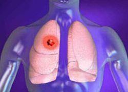 Ученые заглянули внутрь механизма ангиогенеза при метастазах рака легких
