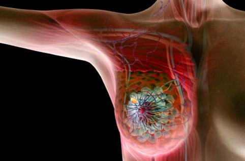 Рак молочной железы: мифы и правда