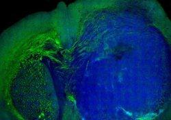 Лазер стал средством визуализации злокачественных опухолей мозга