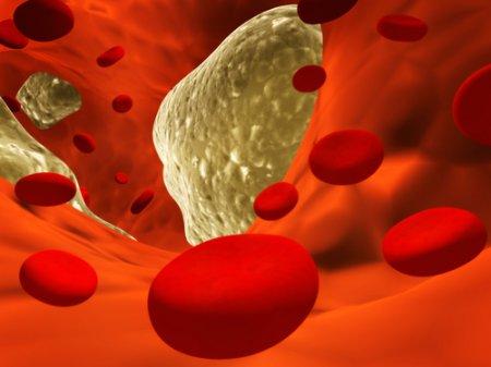 Средства от холестерина защищают от рака после трансплантации