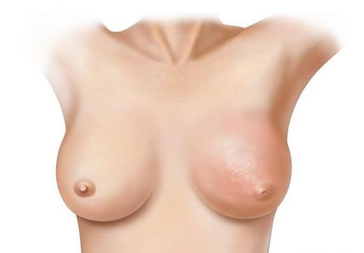 Ученые назвали еще одну причину рака груди