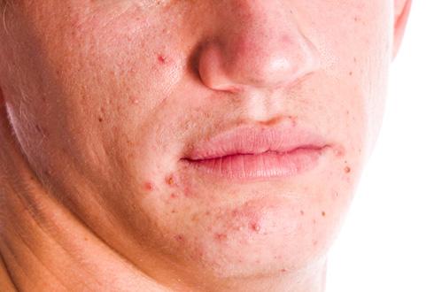 Фурункул на лице шрам