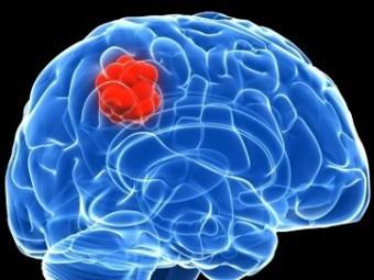 Ученые преобразовали злокачественную опухоль в доброкачественную