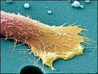 Мужчины не знают первичных симптомов рака простаты и кишечника