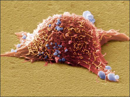 Российские ученые создали нанопрепараты против рака