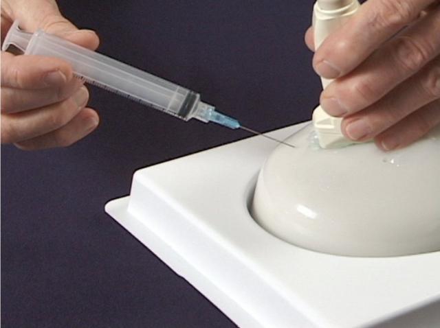 Новый тест поможет избежать рецидива рака груди