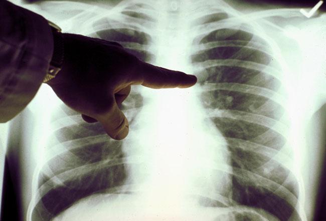 Группа ученых сумела найти ключевые гены, ответственные за развитие рака легких