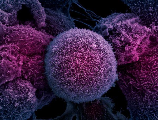 Впервые удалось найти гены, вызывающие агрессивный рак