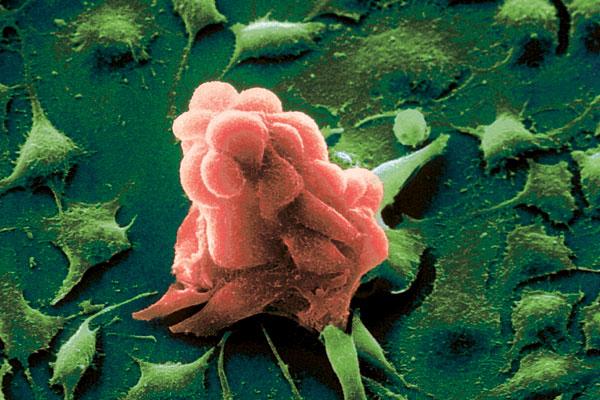 Американские медики заставили раковые клетки самоуничтожаться