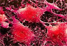 Многие виды рака вызваны инфекцией