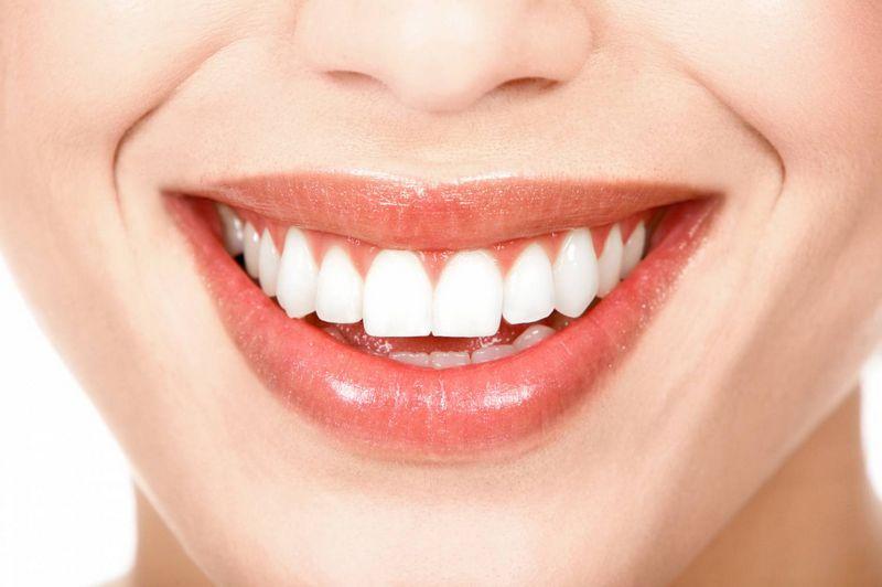 Голливудская улыбка — проще простого!