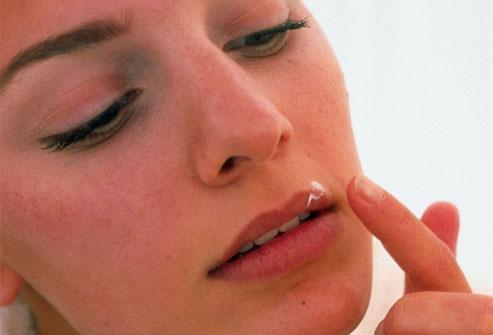 Причины появления и способы лечения простуды на губах