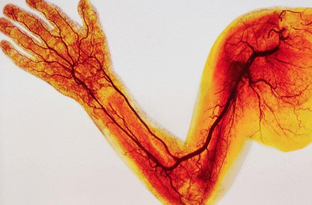 Заболевание периферических артерий