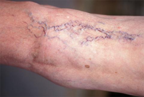 Вовремя диагностированный варикоз – легкое и безболезненное лечение